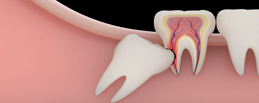 Wisdom Teeth and its impacts on the Adjacent Teeth