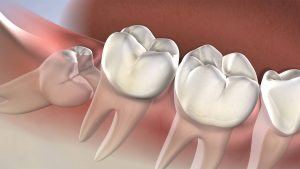 What should you know about Wisdom Teeth Symptoms and Removal!