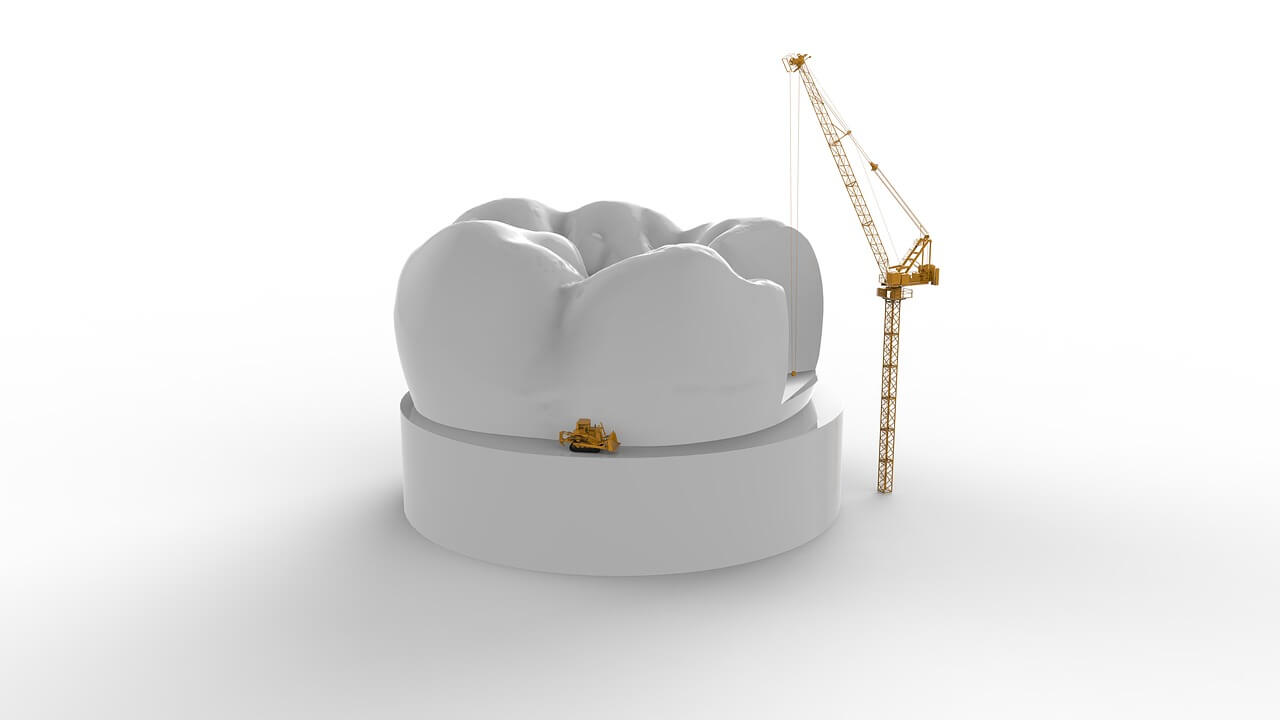 Wisdom Teeth Guide: 5 Common Questions Answered